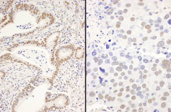 Immunohistochemistry (Formalin/PFA-fixed paraffin-embedded sections) - Anti-DIS antibody (ab70243)