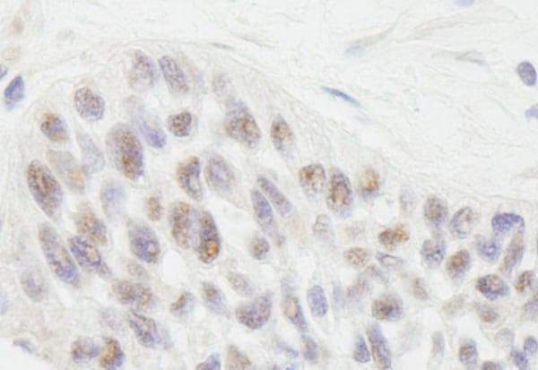 Immunohistochemistry (Formalin/PFA-fixed paraffin-embedded sections) - Anti-Rif1 antibody (ab70254)