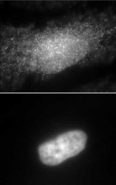 Immunocytochemistry/ Immunofluorescence - Anti-INPPL1/SHIP-2 antibody (ab70267)
