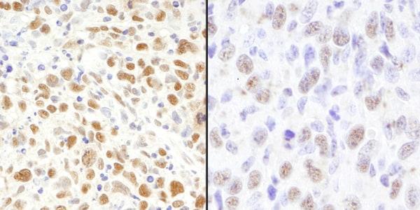 Immunohistochemistry (Formalin/PFA-fixed paraffin-embedded sections) - Anti-MSH2 antibody (ab70270)