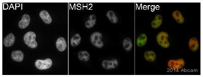 Immunocytochemistry/ Immunofluorescence - Anti-MSH2 antibody (ab70270)