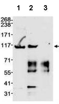 Immunoprecipitation - Anti-MSH2 antibody (ab70270)