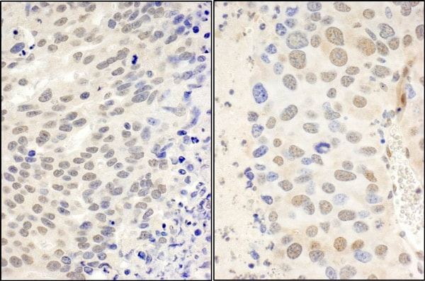 Immunohistochemistry (Formalin/PFA-fixed paraffin-embedded sections) - Anti-CTCF antibody (ab70303)