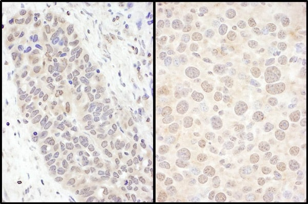 Immunohistochemistry (Formalin/PFA-fixed paraffin-embedded sections) - Anti-FOXO3A antibody (ab70314)