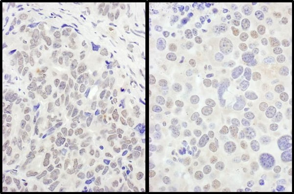 Immunohistochemistry (Formalin/PFA-fixed paraffin-embedded sections) - Anti-FOXO3A antibody (ab70315)