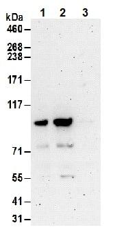 Immunoprecipitation - Anti-FOXO3A antibody (ab70315)