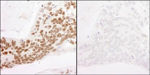 Immunohistochemistry (Formalin/PFA-fixed paraffin-embedded sections) - Anti-RNA polymerase II CTD repeat YSPTSPS (phospho S2) antibody (ab70324)