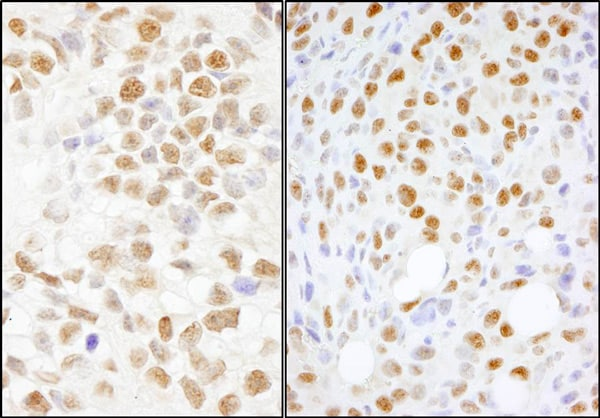 Immunohistochemistry (Formalin/PFA-fixed paraffin-embedded sections) - Anti-nmt55 / p54nrb antibody (ab70335)