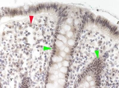 Immunohistochemistry (Formalin/PFA-fixed paraffin-embedded sections) - Anti-Nucleostemin antibody (ab70346)