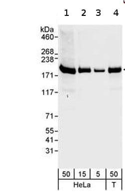 Western blot - Anti-hCAP-D3 antibody (ab70349)