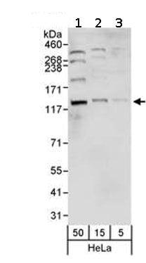 Western blot - Anti-NCAPG2 antibody (ab70350)