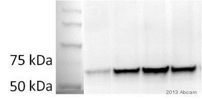 Western blot - Anti-PCK1/PEPC antibody (ab70358)