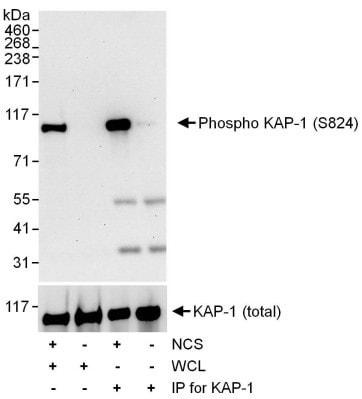 Western blot - Anti-KAP1 (phospho S824) antibody (ab70369)