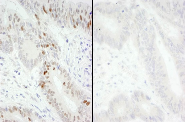 Immunohistochemistry (Formalin/PFA-fixed paraffin-embedded sections) - Anti-MCM2 (phospho S40 + S41) antibody (ab70371)