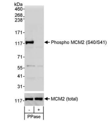 Western blot - Anti-MCM2 (phospho S40 + S41) antibody (ab70371)