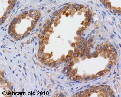 Immunohistochemistry (Formalin/PFA-fixed paraffin-embedded sections) - Anti-RICTOR antibody (ab70374)