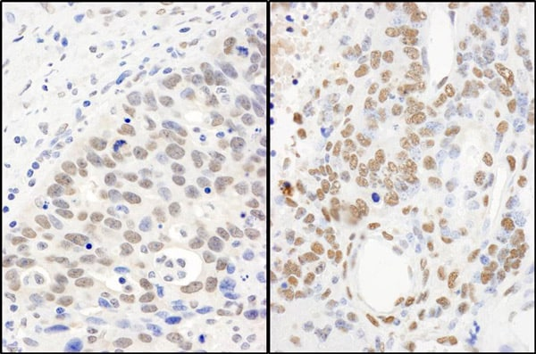 Immunohistochemistry (Formalin/PFA-fixed paraffin-embedded sections) - Anti-TLS/FUS antibody (ab70381)