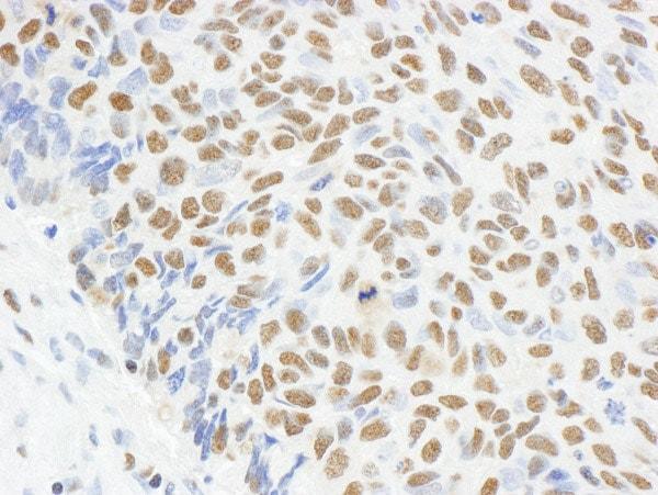 Immunohistochemistry (Formalin/PFA-fixed paraffin-embedded sections) - Anti-MAD2 antibody (ab70383)