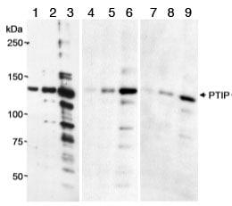 Western blot - Anti-PTIP antibody (ab70434)