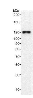 Western blot - Anti-INTS3 antibody (ab70451)