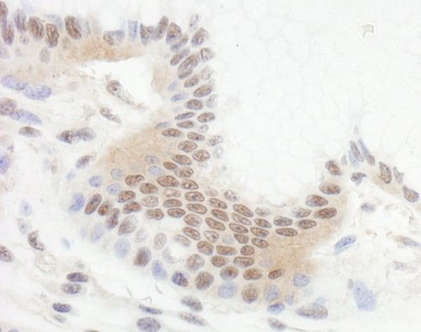 Immunohistochemistry (Formalin/PFA-fixed paraffin-embedded sections) - Anti-Ctip2 antibody (ab70452)