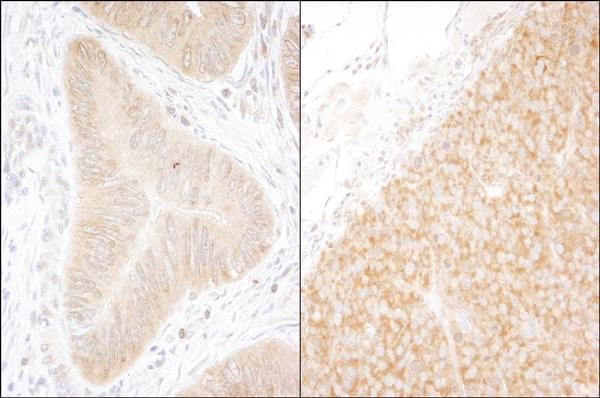 Immunohistochemistry (Formalin/PFA-fixed paraffin-embedded sections) - Anti-DDX6 antibody (ab70455)