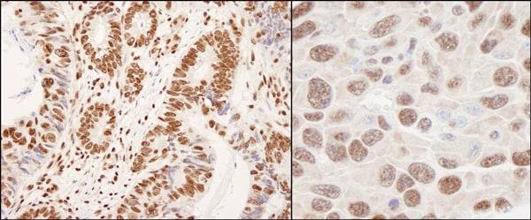 Immunohistochemistry (Formalin/PFA-fixed paraffin-embedded sections) - Anti-hnRNP K antibody (ab70490)
