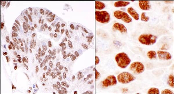 Immunohistochemistry (Formalin/PFA-fixed paraffin-embedded sections) - Anti-hnRNP K antibody (ab70492)