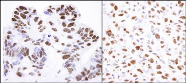 Immunohistochemistry (Formalin/PFA-fixed paraffin-embedded sections) - Anti-Nucleolin antibody (ab70493)