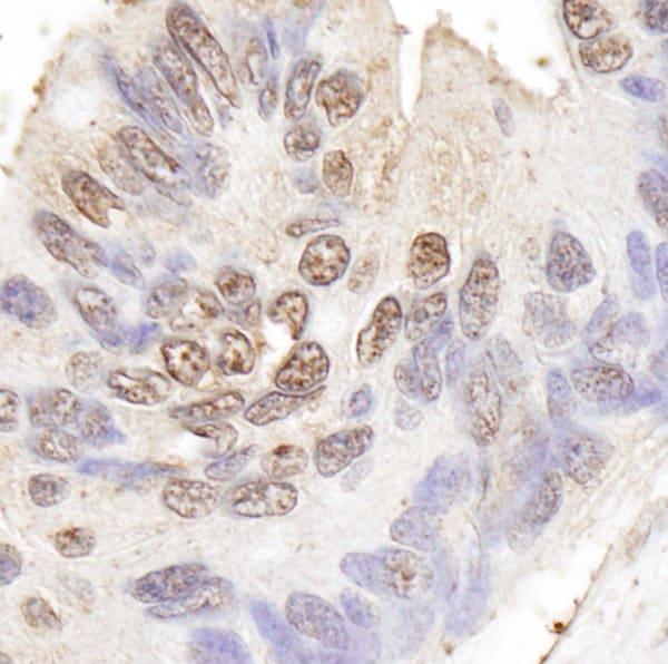 Immunohistochemistry (Formalin/PFA-fixed paraffin-embedded sections) - Anti-BLAP75 antibody (ab70525)