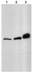 Western blot - Anti-HRPT2 antibody (ab70533)