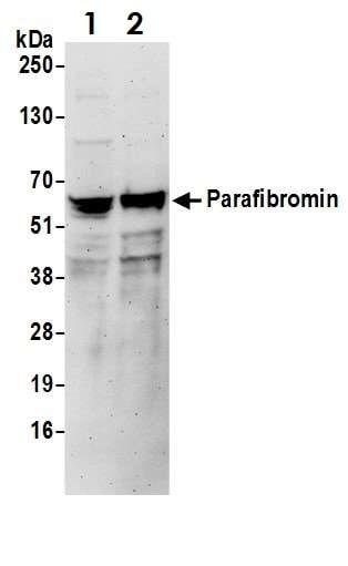 Western blot - Anti-HRPT2/Parafibromin antibody (ab70533)