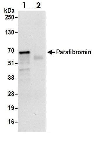Immunoprecipitation - Anti-HRPT2/Parafibromin antibody (ab70533)