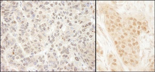 Immunohistochemistry (Formalin/PFA-fixed paraffin-embedded sections) - Anti-MCAK antibody (ab70536)