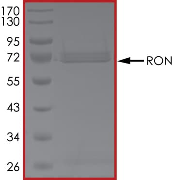 SDS-PAGE - Recombinant human RON protein (ab70541)