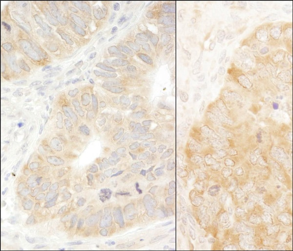 Immunohistochemistry (Formalin/PFA-fixed paraffin-embedded sections) - Anti-EIF2S1 antibody (ab70542)