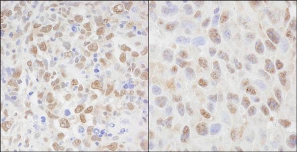 Immunohistochemistry (Formalin/PFA-fixed paraffin-embedded sections) - Anti-Cellular Apoptosis Susceptibility/CSE1L antibody (ab70547)