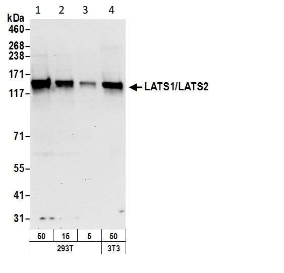Western blot - Anti-LATS1 +LATS2 antibody (ab70565)
