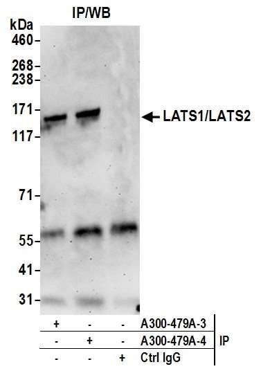 Immunoprecipitation - Anti-LATS1 +LATS2 antibody (ab70565)
