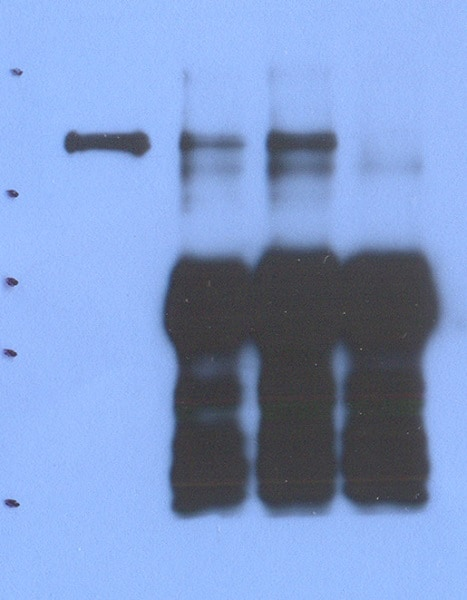 Immunoprecipitation - Anti-Plasminogen antibody [9A1] (ab70584)
