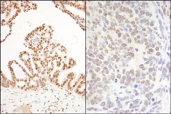Immunohistochemistry (Formalin/PFA-fixed paraffin-embedded sections) - Anti-DHX8 antibody (ab70588)