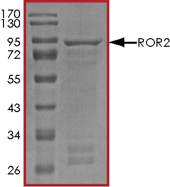 SDS-PAGE - Recombinant human ROR2 protein (ab70614)