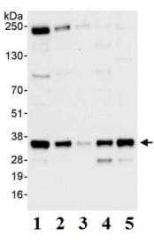 Western blot - Anti-PP-X antibody (ab70623)