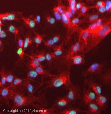 Immunocytochemistry/ Immunofluorescence - Anti-RBM14 antibody (ab70636)