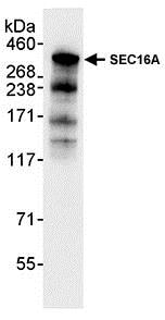 Immunoprecipitation - Anti-SEC16A/SEC16 antibody (ab70722)