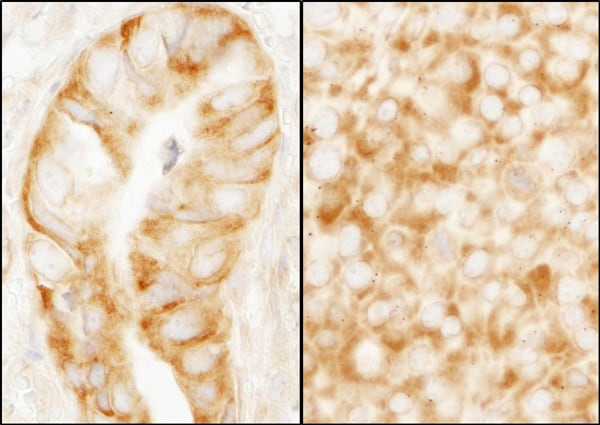 Immunohistochemistry (Formalin/PFA-fixed paraffin-embedded sections) - Anti-RPL7A antibody (ab70753)