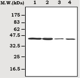 Western blot - Anti-CSNK2A1 antibody [8E5] (ab70774)