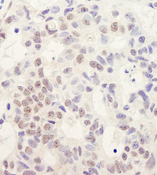 Immunohistochemistry (Formalin/PFA-fixed paraffin-embedded sections) - Anti-DHX38 antibody (ab70781)