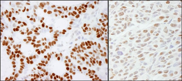 Immunohistochemistry (Formalin/PFA-fixed paraffin-embedded sections) - Anti-RCC2 antibody (ab70788)