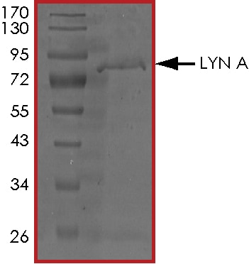 SDS-PAGE - Recombinant human Lyn protein (ab70789)